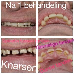 knarsen gevoelige tanden dunne tanden spleetje tandarts