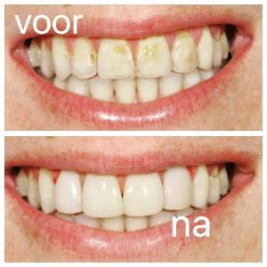 Bruine tanden facings