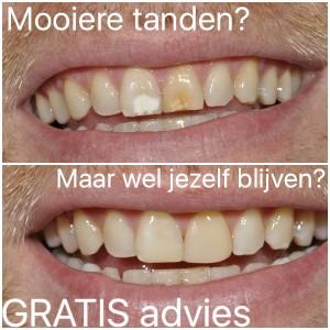 Mooie tanden na facings